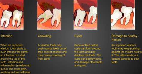 wisdom teeth surgery price picture 2