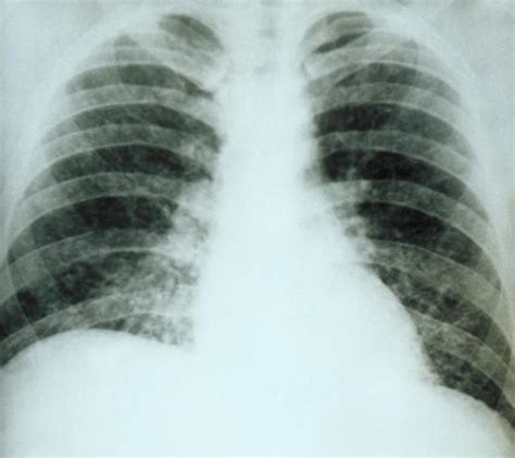 yeast in bone marrow picture 6