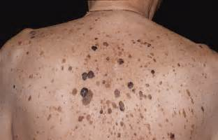 different kinds of warts picture 5