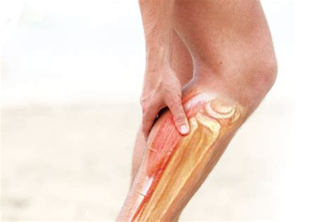 foot and leg muscle cramps picture 3