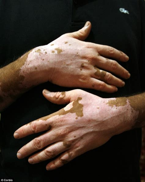 causes of changes of skin condition picture 5