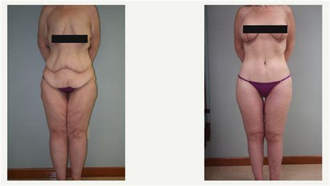 plastic surgery after weight loss picture 1
