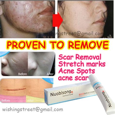acne spot gel price philippines picture 2