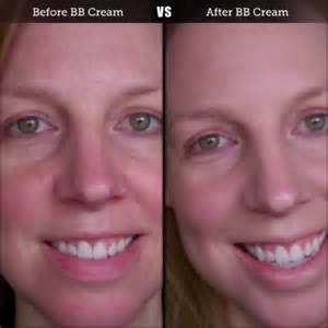cream before and after picture 14