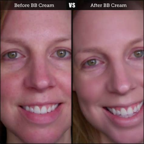 cream before and after picture 2