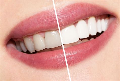 whitening picture 1