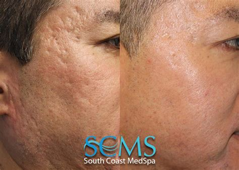 acne scar revision in encino picture 11