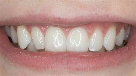 columbia teeth whitening picture 18
