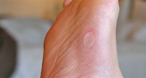 foot skin problems picture 15
