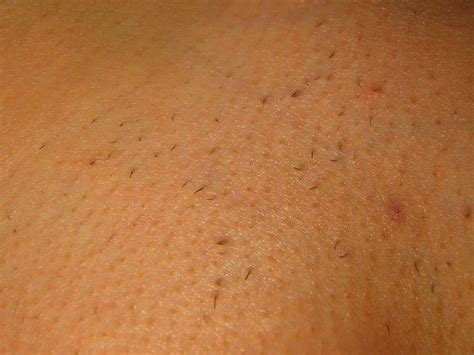 laser hair removal pubic area picture 5