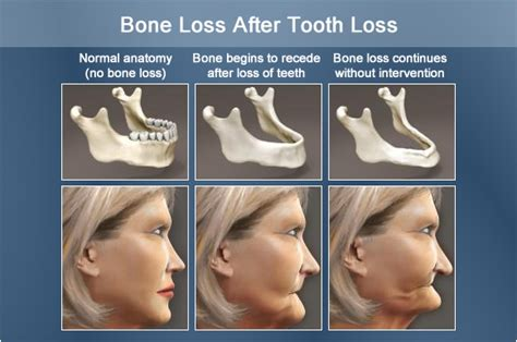 coffee and tooth bone loss picture 18