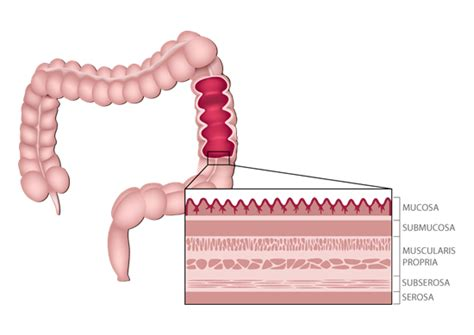 prognosis of cancer that penetrates the wall of the colon picture 23