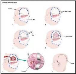 low blood pressure brain aneurysm picture 2