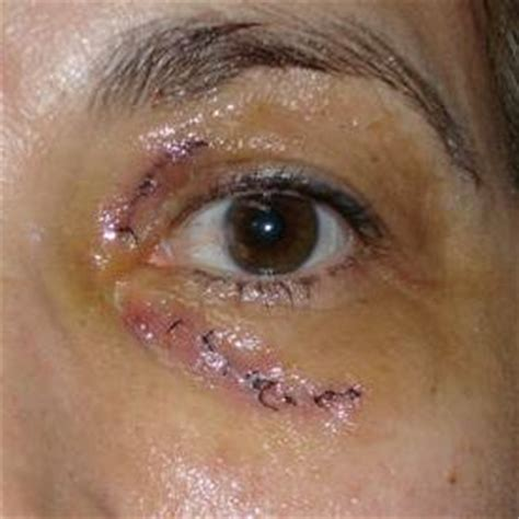 contact lents keratoconus picture 10