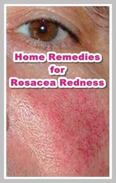 homemade herbal for rosacea picture 13