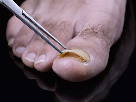 fungus on the toe nails picture 1