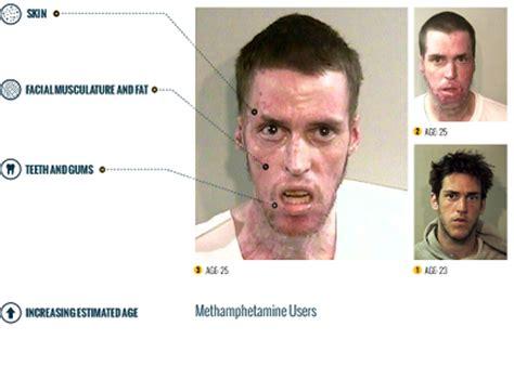 meth skin disorders picture 2