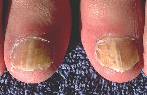 toenail fungus laser treatment wisconsin picture 14