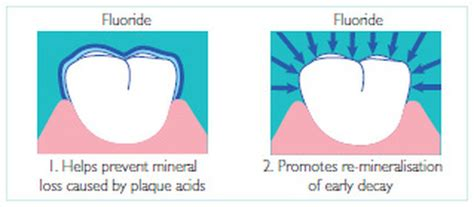 fluoride bad for teeth picture 5