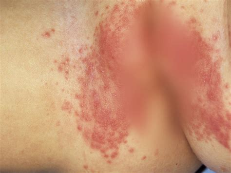 common skin infections irritations picture 7