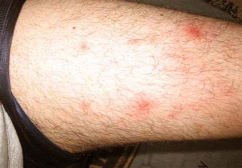 what cause vaginal irritations and acne on legs picture 15