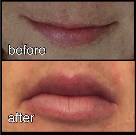 can a lip lift look natural picture 2