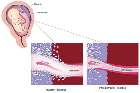 causes of decreased blood supply to placenta picture 5