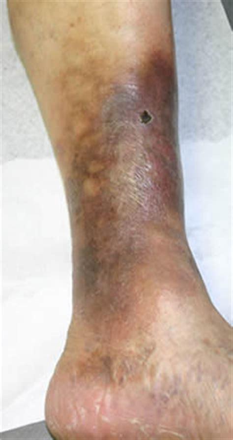 hemosiderin skin discoloration picture 5