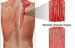 information on how to care for muscle pull picture 1