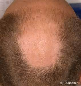 increased testosterone baldness picture 6