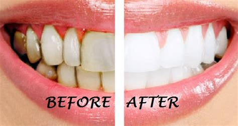 whiten teeth with pineapple picture 11