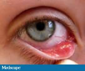 bacterial eye infections picture 10