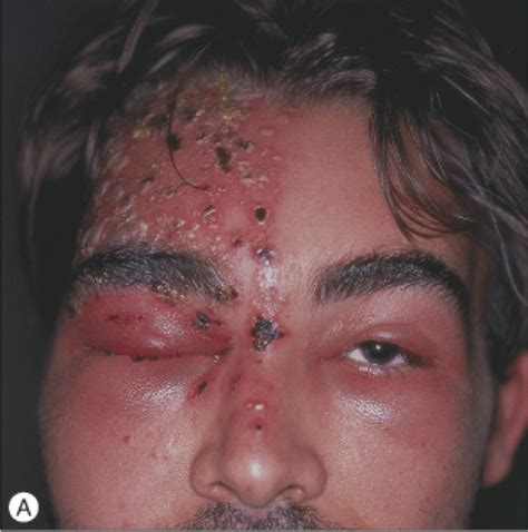 are shingles a form of herpes picture 3