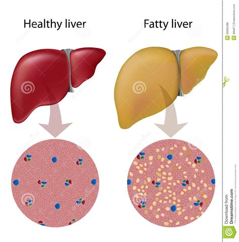 fatty liver syndrome in women picture 9