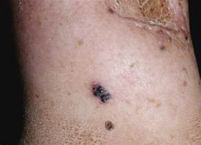 metastatic picture 2