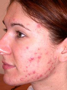 acne symptoms picture 7