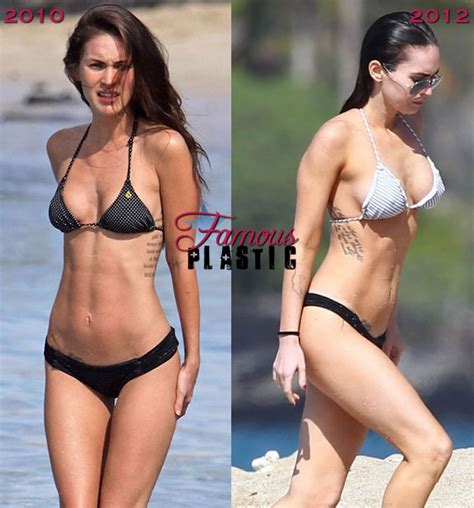celebrities that have had breast augmentation jobs picture 7