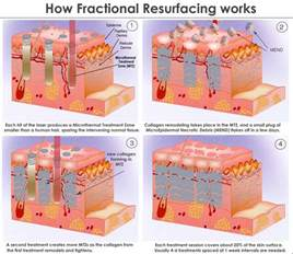 fractil skin procedure picture 2