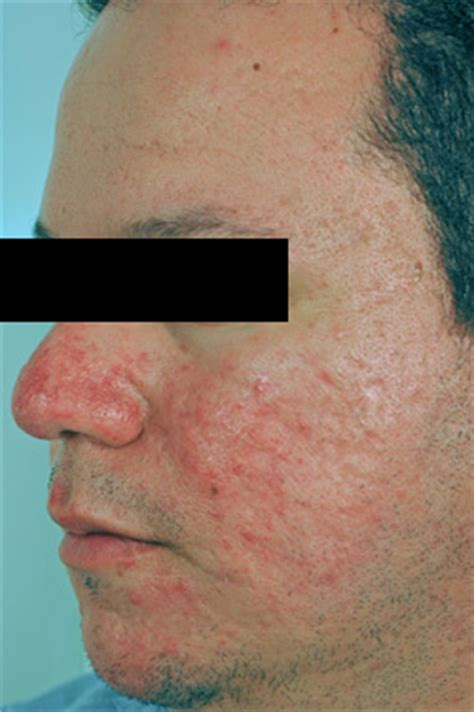 ultraviolet treatment for acne rosacea picture 2