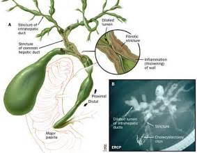 cholangitis picture 2