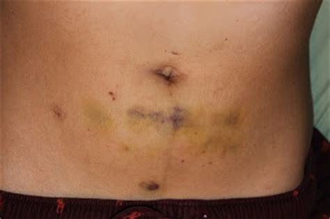stretch marks after laparoscopy picture 13