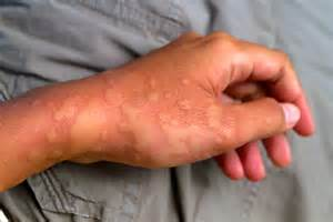 chronic idiopathic urticaria picture 10
