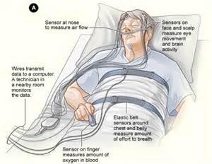 apnea sleep studies picture 5