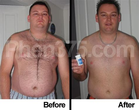 best over the counter weight loss fat burner picture 3