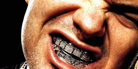 bling encrusted teeth picture 2
