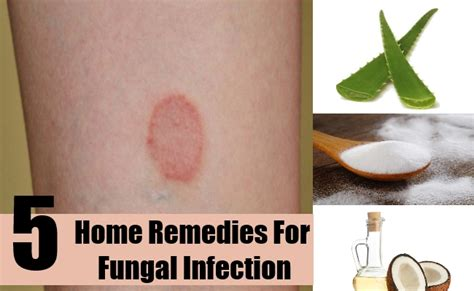 yeast infection home remedy picture 7