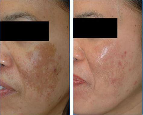 acne tretment pregnancy ma picture 3