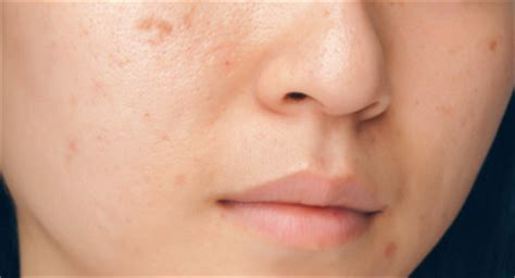 best contraceptive for acne picture 3