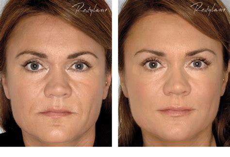 men acne picture 10
