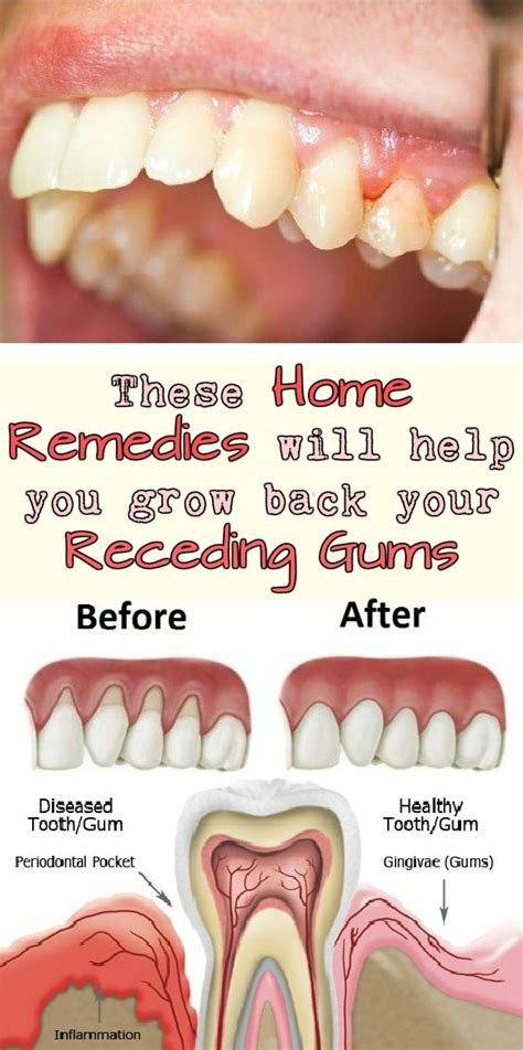 drugs affect on teeth and gums picture 9
